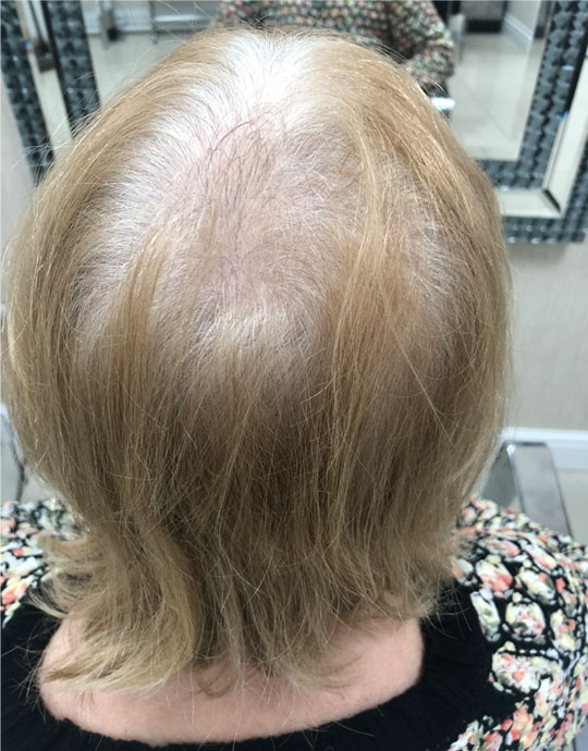 Hair InXs Salon Womens Hair Loss Before Transformation